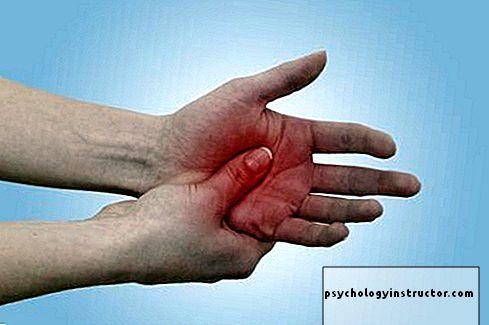 Artrito gydimas